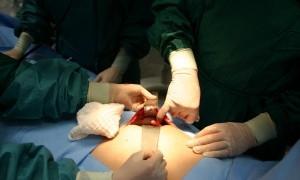 Лечение банального аппендицита привело к остановке сердца